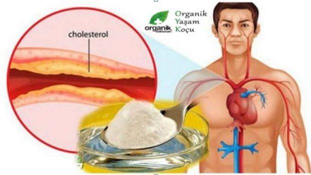 kolesterol-728x410